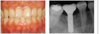 インプラント(人工歯根)治療